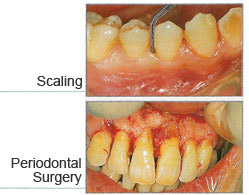 How is Periodontal Disease Treated?
